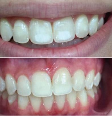 Bijele mrlje na zubima – White spots