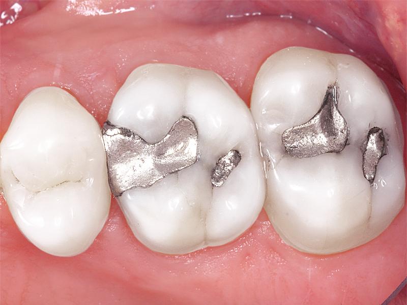Nacionalni plan mjera ukidanja dentalnog amalgama 2020-2025